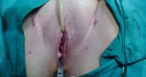 Sling uretral para inconsistencia urinaria