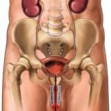Cirugía lasser para próstata y cálculos